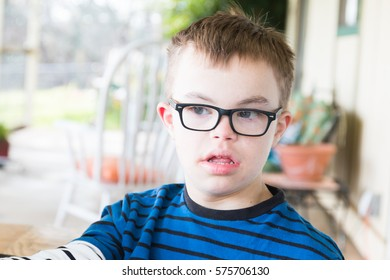 Close up of Young Boy With Downs Syndrome