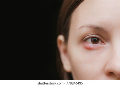 Close up of young caucasian brunette woman barley brown one eye infection, eyelid abscess, stye, hordeolum. Concept of health, disease and treatment. Copy space for advertisement. With place for text