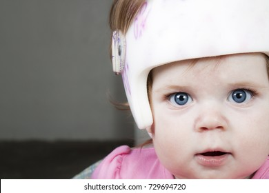 Close up of a young girl wearing a helmet for a flat head also known as plagiocephaly