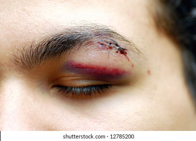 Close up of a young man with an injured eye