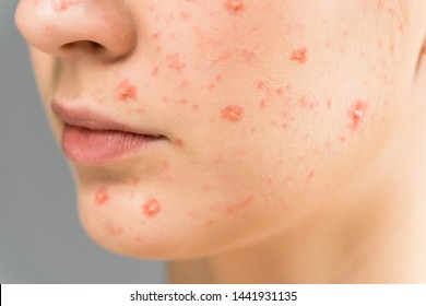close up of young woman with pimples on face isolated on grey
