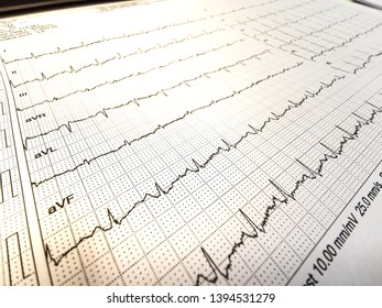 Closed up of EKG, Electrocardiogram, paper with line of arrhythmia