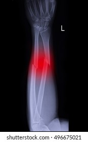 closed fracture radius and ulna left hand