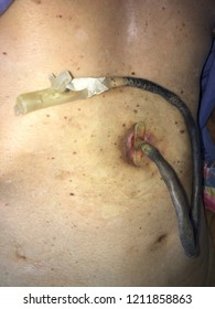Closed up percutaneous endoscopic gastrostomy (P.E.G) or tube feeding patient stomach.