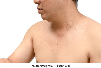 Closed up the skin tags or Seborrheic Keratosis on neck man isolated on white background.Health care concept