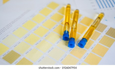 Closed urine tubes are placed on color charts. The concept of analyzes, diagnostics of diseases. Control of the rate of drinking water