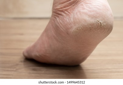 Closed-up of cracked heels, also known as fissures, a common foot problem
