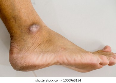 Closed-up of a dry and cracked heel, crack heel on white background