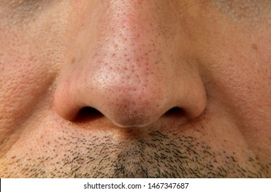 Blackhead Images, Stock Photos & Vectors | Shutterstock