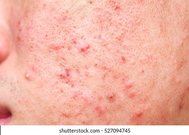 close-up acne on face skin