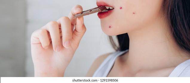 Closeup Acne Problem Face Woman Eating Chocolate bar.
