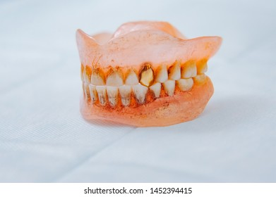 Close-up an acrylic denture prosthesis of the upper and lower jaws of a man