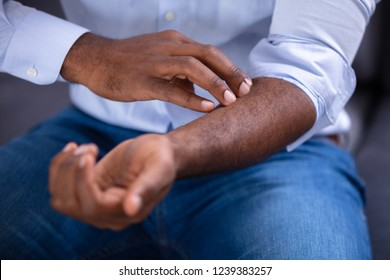 Close-up Of An African Man Scratching His Hand