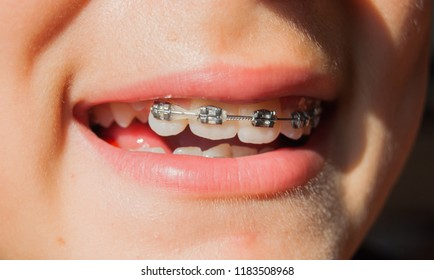 Close-up of ajar mouth with a dental metal dental appliance for the teeth