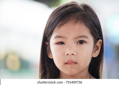 Eye Swelling Images, Stock Photos & Vectors | Shutterstock