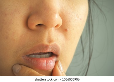 Closeup asian woman face with brittle and dry lips reaction from lipstick, concept lip salve.