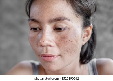 closeup Asian woman face having skin problem with dark spot, freckle from uv light