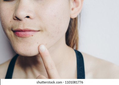 Close-up of Asian woman has problems with skin on her face. Problems with acne and scar on the female skin with white background.
