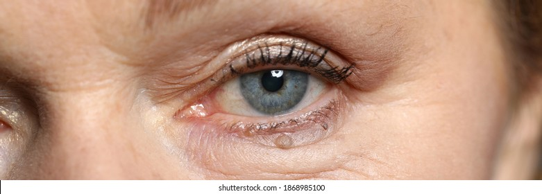 Close-up of attractive womans eye. Macro shot of senior female looking in camera. Beautiful blue colour eyeball and appearance. Wrinkles and moles. Youth and ageing. Natural beauty concept