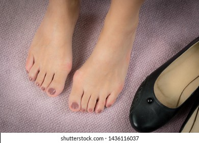 Closeup : Bare feet of woman, she take off her shoes to release pain after long day wearing pointy and narrow shoes  -  Medical condition called bunions (Hallux valgus) Woman's health concept.