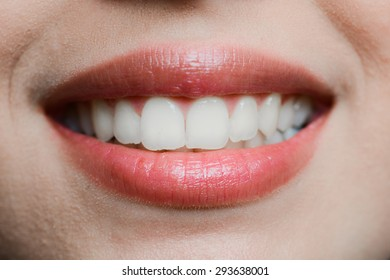 close-up of a beautiful woman mouth white teeth and glossy lips