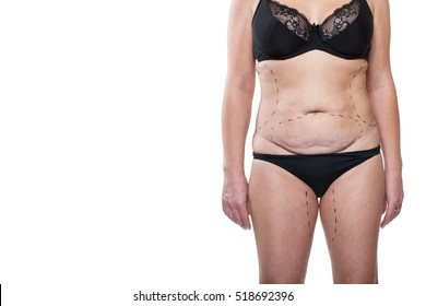Closeup Beauty Portrait Body Women, Markings on the Body Liposuction, Excess Fat Woman. Isolated on White Background. Model of Underwear