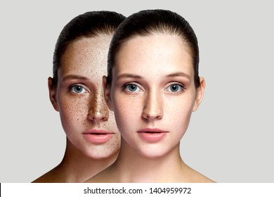 Closeup before and after portrait of beautiful brunette woman after laser treatment removing freckles on face looking at camera. makeup or cosmetology. indoor studio shot, isolated on gray background.