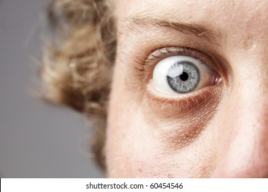 Closeup of a blue eye, of a Caucasian man, showing intricate details of the iris and an expression of shock or fear.