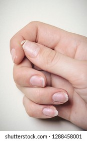 Close-up of brittle nails. A broken nail on your finger.