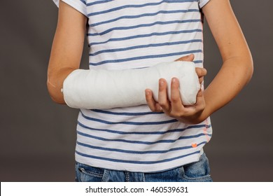 Close-up of a broken arm in a cast on striped shirt  background.