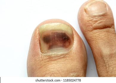 closeup bruise or bloodlush under right toenail