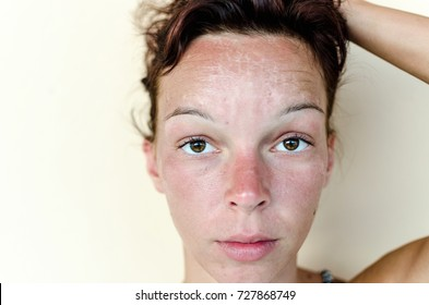 Closeup of burnt woman face skin from sunbathing. Red skin. Problem with face. Facial pain.