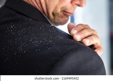 Close-up Of A Businessman's Hand Brushing Off Fallen Dandruff On Shoulder