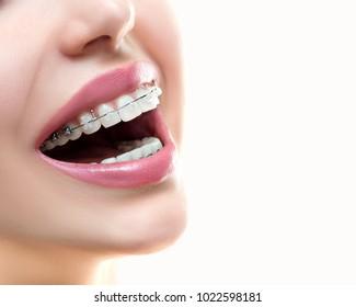 Closeup Ceramic and Metal Braces on Teeth.