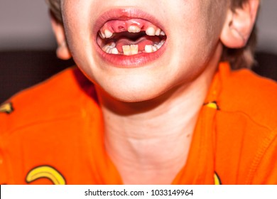 Close-up of child of eight years with the problem of not loosing his baby teeth - persistent baby teeth problem, also called shark disease - after surgery removing of milk teeth