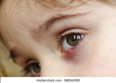 Close-up of a child's eye stye. Ophthalmic hordeolum disease.