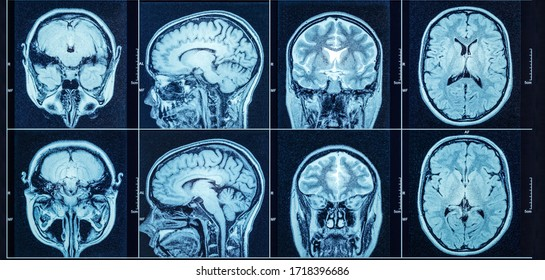 Closeup of a CT scan with brain. Medical, science and education mri brain background. Magnetic resonance imaging.