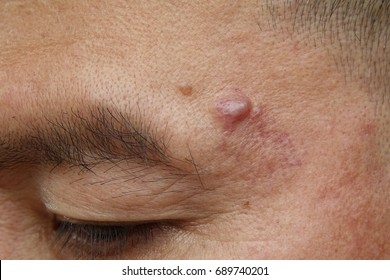 Close-up cyst on a human face