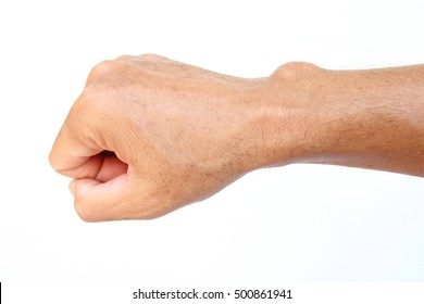 Close-up cyst on a wrist in the hand