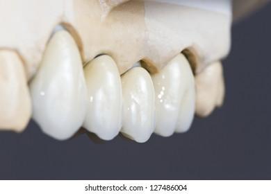 closeup for a dental ceramic bridge o na  cast model