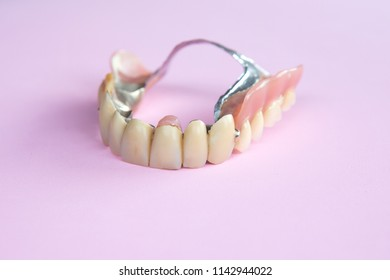 closeup of dental prosthesis on pink background
