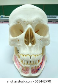 Closeup dental tooth model cast showing decay casing pain, enamel and roots in profile interior of  human skull model