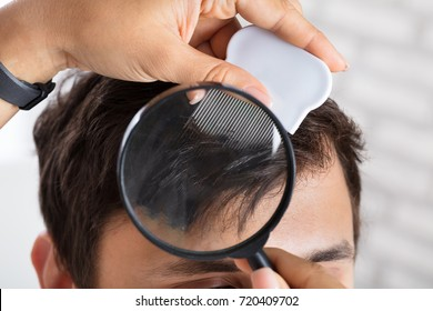 Close-up Of A Dermatologist's Hand Checking Patient's Hair With Magnifying Glass
