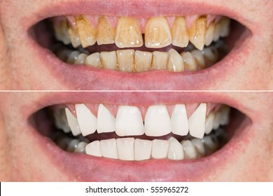 Close-up Detail Of Man Teeth Before And After Whitening