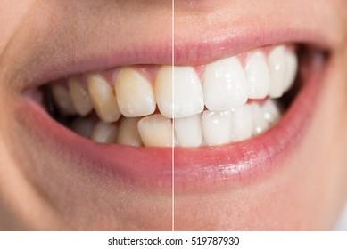白化前と白化後に人の歯の接写詳細
