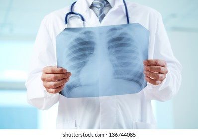 Close-up of doctor holding x-ray