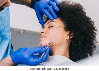 Close-up of doctor's hand drawing correction lines on young woman's face. Procedure before plastic surgery.