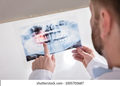 Close-up Of A Doctor's Hand Holding Teeth X-ray