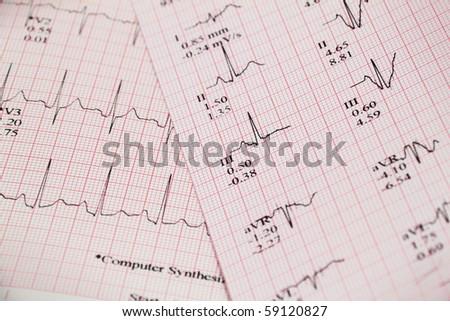 closeup ecg graph printout heart stress stock photo edit now