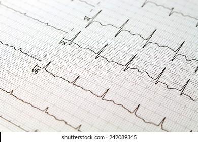 Closeup of ECG paper, normal sinus rhythm